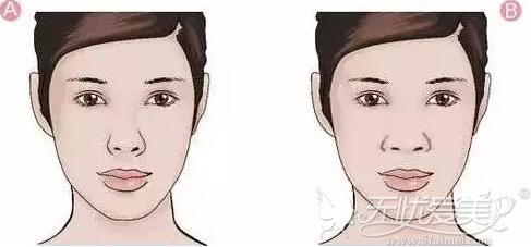 同样的一张脸,不同的鼻型会给人不同的感觉