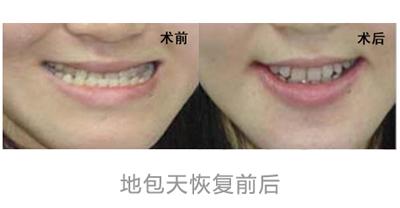 成都华美牙科地包天牙齿矫正手术图片