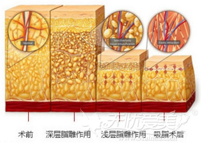 上海华美整形医院分层紧肤吸脂术