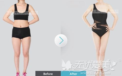 上海华美何斌专家分层紧肤吸脂术案例