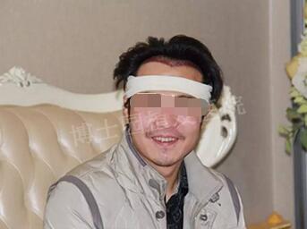 在北京博士园植发整形后