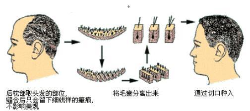 北京博士园植发整形手术