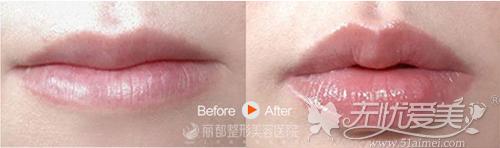 玻尿酸丰唇前后对比案例