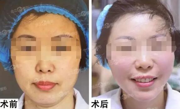 福州台江明星整形项目V-line童颜手术效果对比图