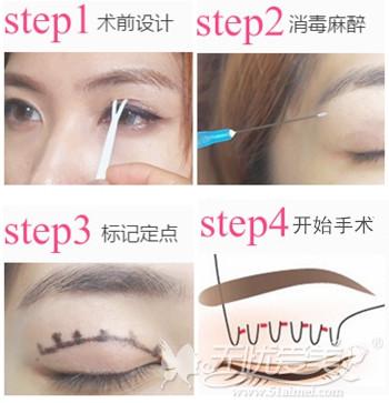 南宁美丽焦点双眼皮手术全过程