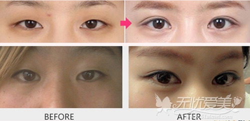 南宁美丽焦点双眼皮手术案例