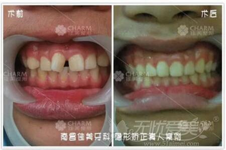 南昌佳美隐形牙齿矫正前后对比图