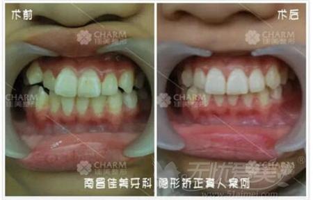 南昌佳美隐形牙齿矫正案例