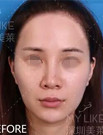在深圳美莱做了自体脂肪填充全脸 让我获得了更多工作机会