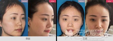 达拉斯综合隆鼻案例