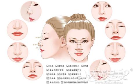 达拉斯综合隆鼻一次隆鼻能解决十三大问题