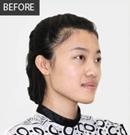 【整形案例】美女在沈阳百嘉丽做隆鼻手术恢复全过程