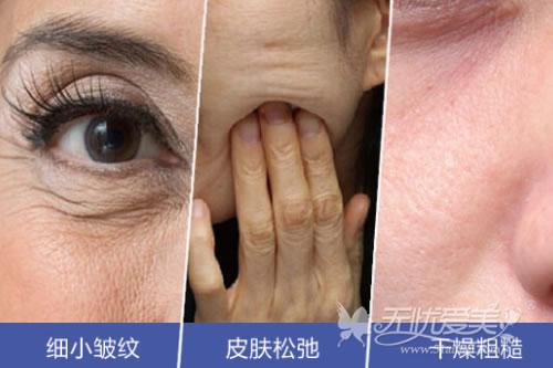 百嘉丽水光针可解决皮肤松弛、干燥粗糙、细小皱纹等主要问题