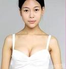 【案例】平胸美女在沈阳百嘉丽做完隆手术 罩杯从A升到C