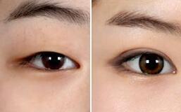 唐山金荣医院双眼皮效果案例对比图