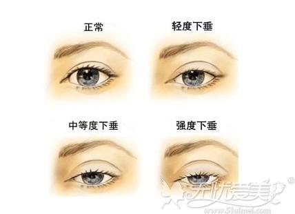 眼睑下垂程度