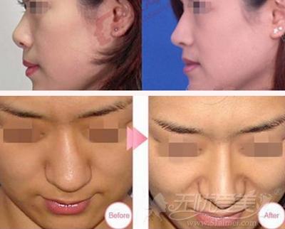 乌鲁木齐整形美容医院鼻综合手术案例