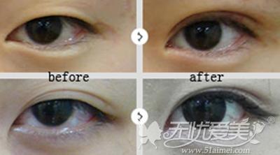 沈阳百嘉丽双眼手术案例