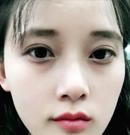 找上海华美管果医生做了双眼皮提肌 我才真正看清这个世界