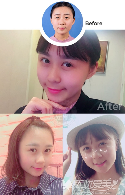 上海华美佀同帅专家的显微精准双眼皮手术案例