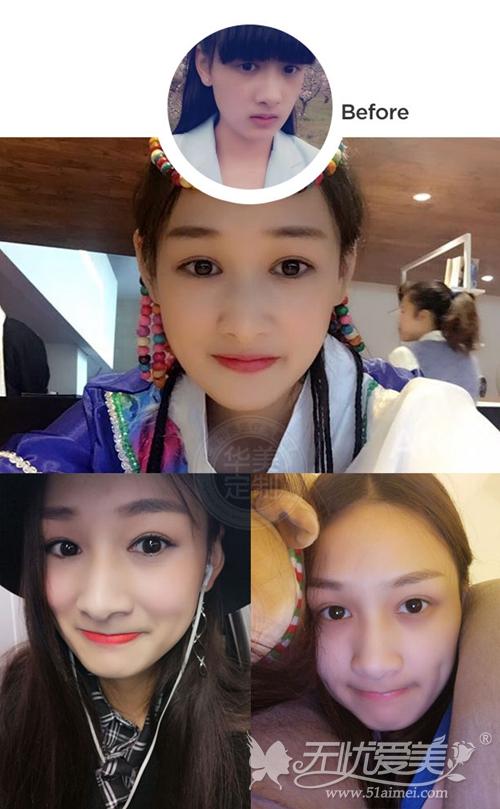 上海华美佀同帅专家双眼皮手术案例