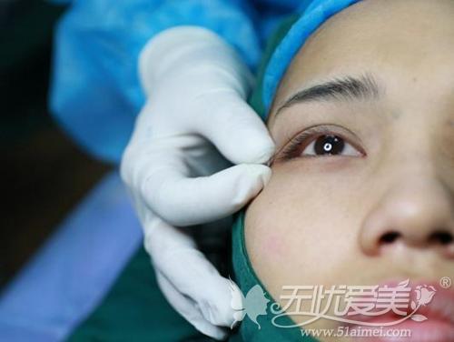 上海华美佀同帅专家的显微精准双眼皮手术