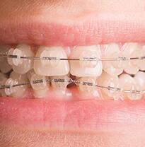 桂林美奥口腔半隐形矫正,青少年矫正牙齿推荐。
