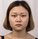 【案例】上海华美杨亚益专家双眼皮手术后2个月恢复过程