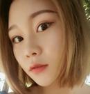 【案例】上海华美杨亚益医生双眼皮手术后2个月恢复过程