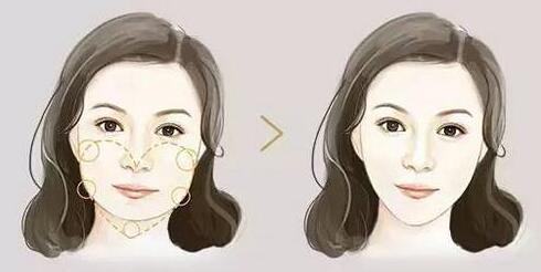 玻尿酸+双心注射技术=大牌定制桃心脸