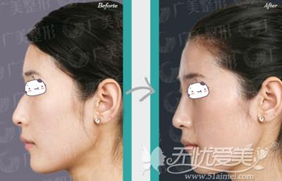 广州广美假体隆鼻手术案例