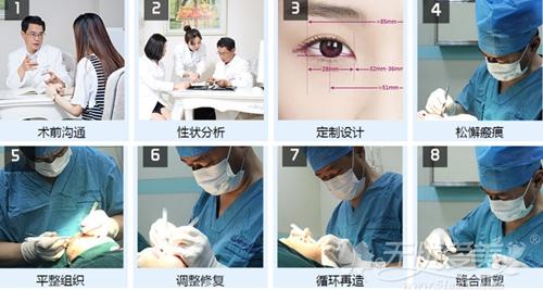 刘风卓精艺双眼皮修复重组手术全过程