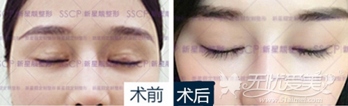 北京新星靓双眼皮疤痕修复案例