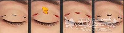 曲靖华美美莱韩式双眼皮手术