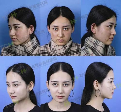 重庆时光刘耿院长激光祛斑案例前后对比图