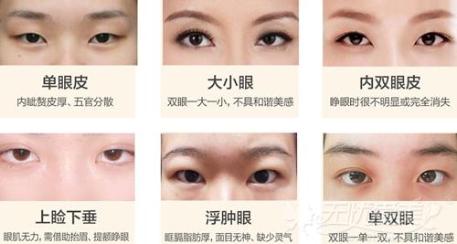 龙岩华美双眼皮手术可以改善的眼形