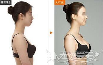 假体隆胸前后 对比案例