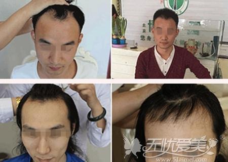 北京博士园MUT鲜活细胞植发技术案例