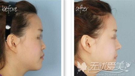 假体隆鼻前后对比案例