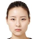 美女在韩国TL整形医院做面部轮廓+自体脂肪填充全过程