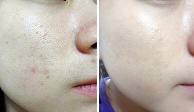 哈尔滨超龙整形微针美塑---平肤修复套组治疗效果对比图