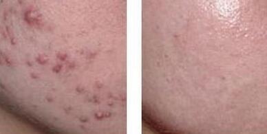 哈尔滨超龙整形微针美塑---控油祛痘套组治疗效果对比图
