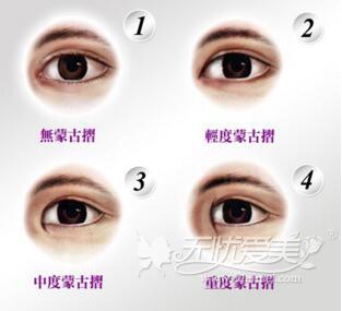 蒙古眼的特征