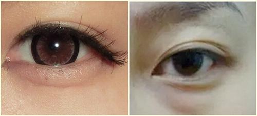 眼袋和卧蚕的区分