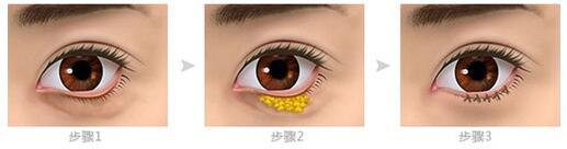 上海伊莱美外内切法去眼袋手术步骤