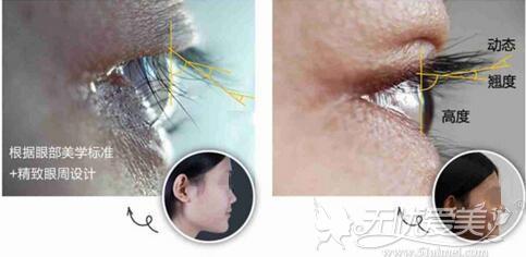 kep双眼皮术后能使睫毛上翘85°