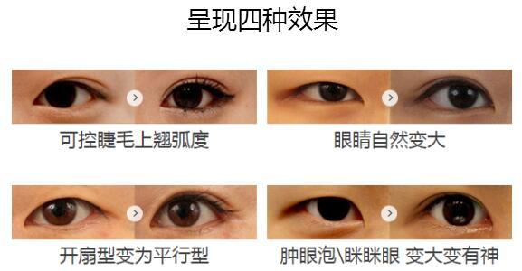 淄博美联臣整形双眼皮手术,呈现四种案例效果