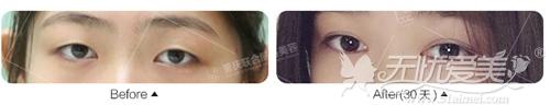 重庆联合丽格韩式双眼皮手术案例