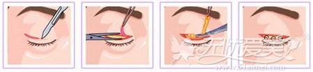 重庆联合丽格韩式双眼皮手术
