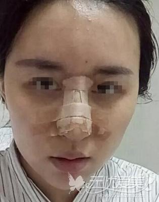 上海伊莱美鼻综合手术第5天